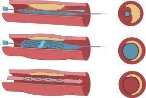 angioplastica-stent-vena-arteria