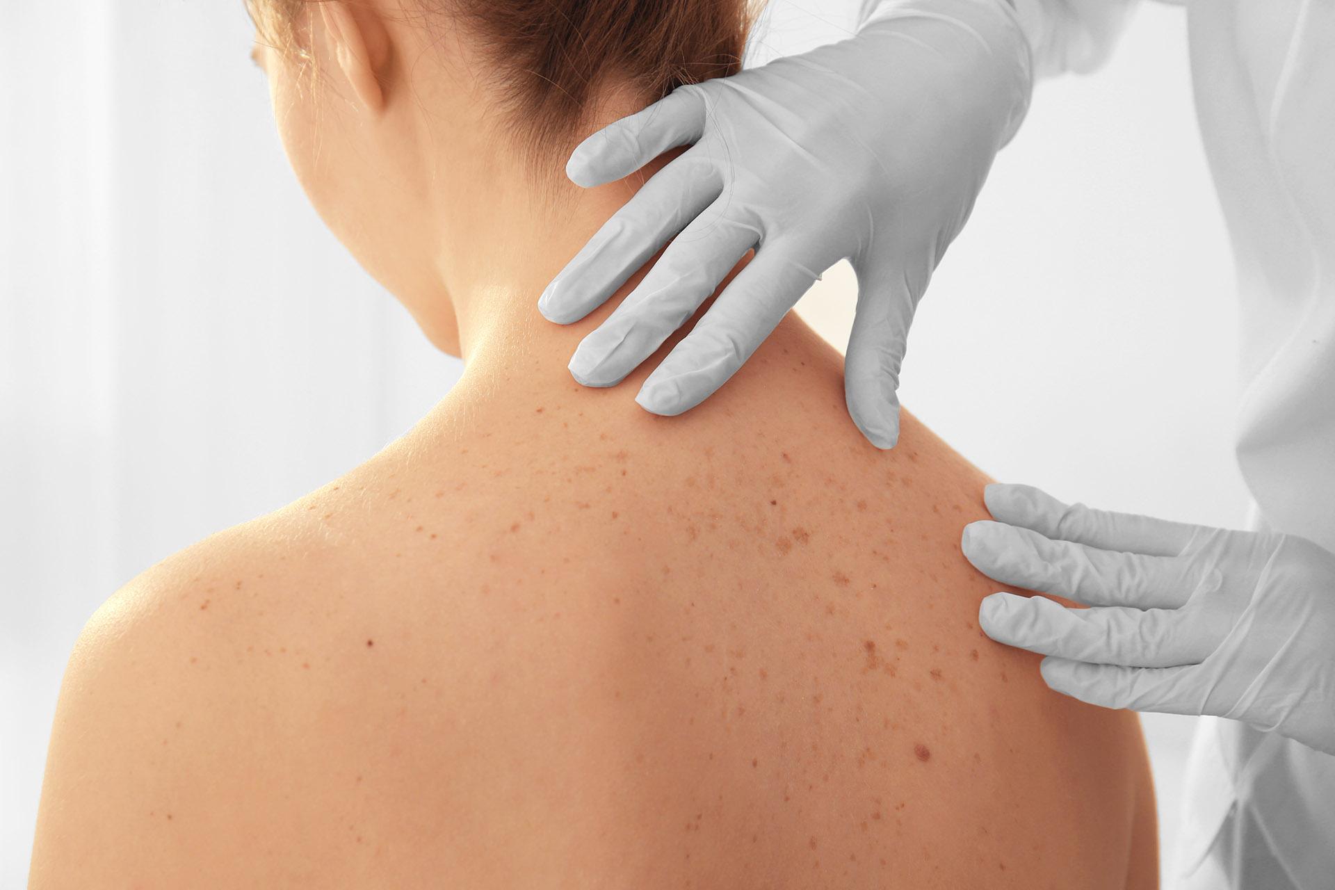 Macchie Di Unto Sulla Pelle macchie scure sulla pelle: ecco il metodo efficace per